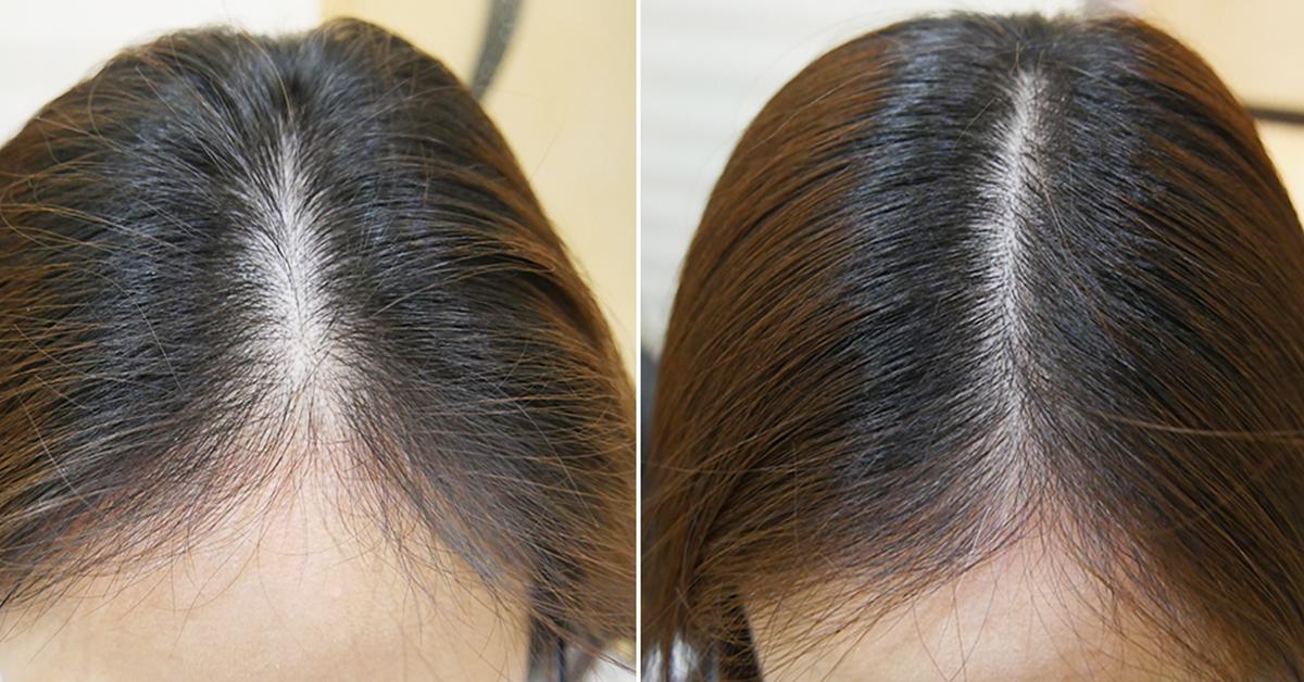 wypadające cebulki włosów