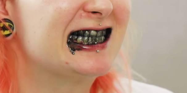 wybielanie zębów węglem