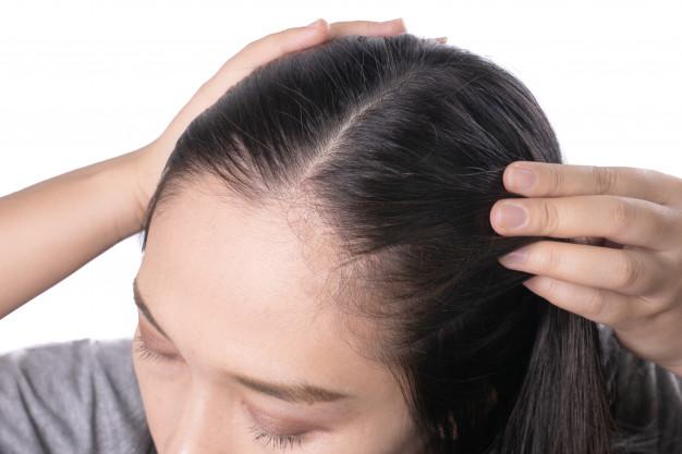 rzadkie włosy